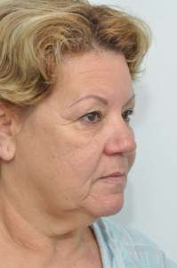 best eyelid surgery new york, best eyelid surgery manhattan