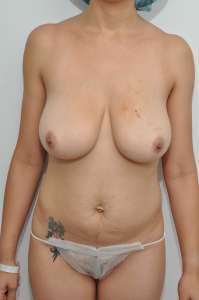 best breast lift manhattan