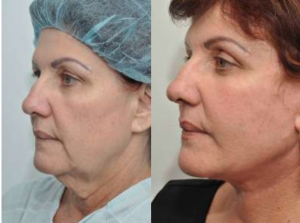 Best Face Lift New York City, Best Face Lift Manhattan