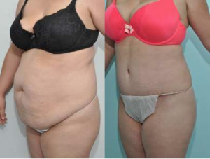 Tummy tuck cost, best tummy tuck in nyc