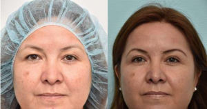eyelid surgery nyc, eyelid surgery manhattan, eyelid surgery cost