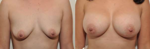 best breast augmentation manhattan new york city