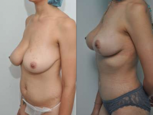 breast lift surgery nyc, breast lift cost, breast lift surgery manhattan, mastopexy surgery cost