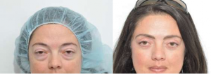 best lower eyelid surgery new york city, best lower eyelid surgery manhattan