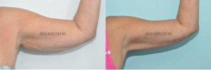 arm lift cost nyc, best arm lift, short scar arm lift manhattan